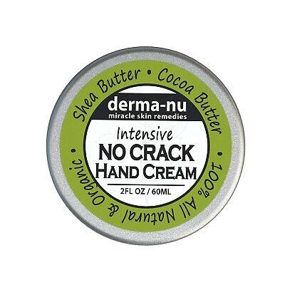 Intensive No Crack Hand Cream - Best Anti Aging Hand Cream - Hand & Foot (Best Anti Aging Hand Cream)