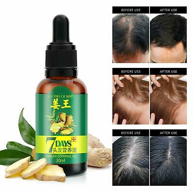7 Day Ginger Germinal Hair Growth Regrow Serum Hairdressing Oil Loss Treatment Hair Care & Styling