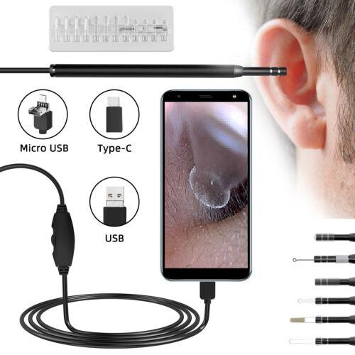 LED Otoscope Earpick EarWax Remover Cleaning Endoscope HD Visual Ear Spoon USB