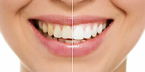 Teeth Whitening - In Office - SPECIAL!!!