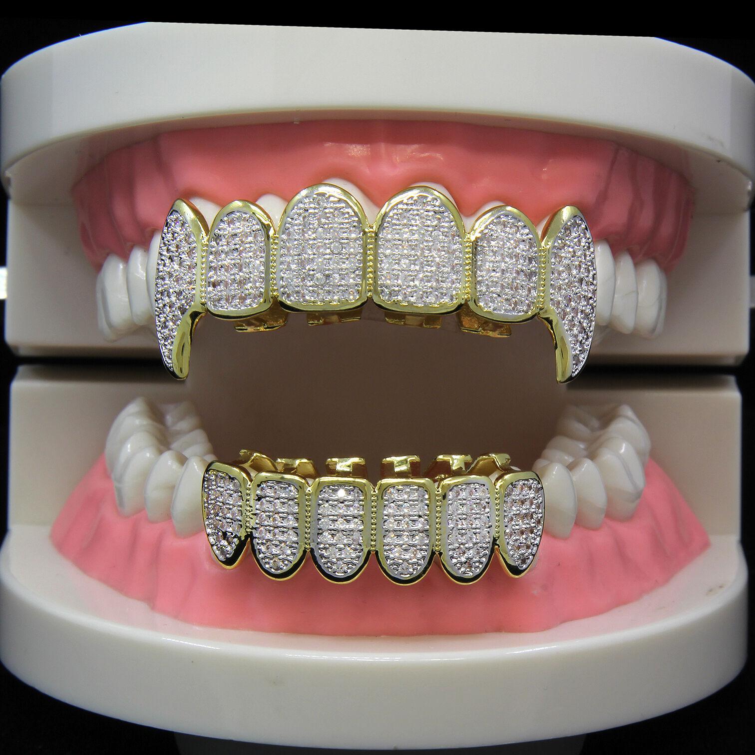 композитные виниры на зубы отзывы