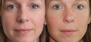45% de reduction injections Botox, Juviderm et Restylane $350 West Island Greater Montréal image 1