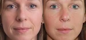 64% off! 10 Botox Units and/or 1ML Restylane/Juviderm Cornwall Ontario image 1