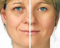 ANTI—AGEING MACHINE EYE LIFT SMOOTHS WRINKLES FIRMS NECK Bondi Junction Eastern Suburbs Preview