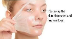 one treatment of chemical peel
