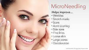 Formation cours microneedling et plasma lift
