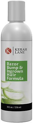 Kerah Lane Razor Bump & Ingrown Hair Formula 8 Oz for Women & Men: Best