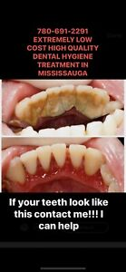 Extremely low cost dental cleaning