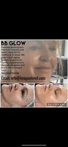 bb glow | Gumtree Australia Free Local Classifieds