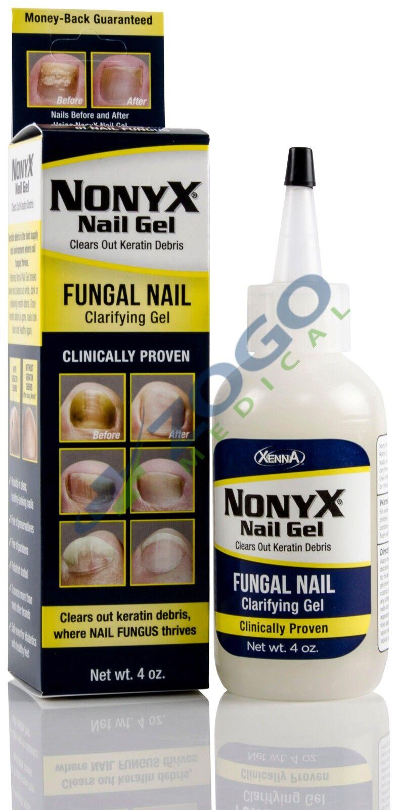 Xenna 101 NonyX Nail Gel 4 oz 812634001014   eBay