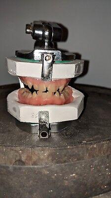 Vintage Articulator Model With Upper Lower Teeth Model - Chuck Deckers Teeth