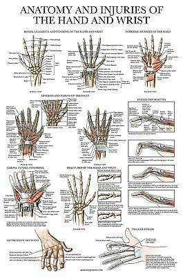 Laminated Anatomy And Injuries Of The Hand And Wrist Poster - Hand And Wrist ...