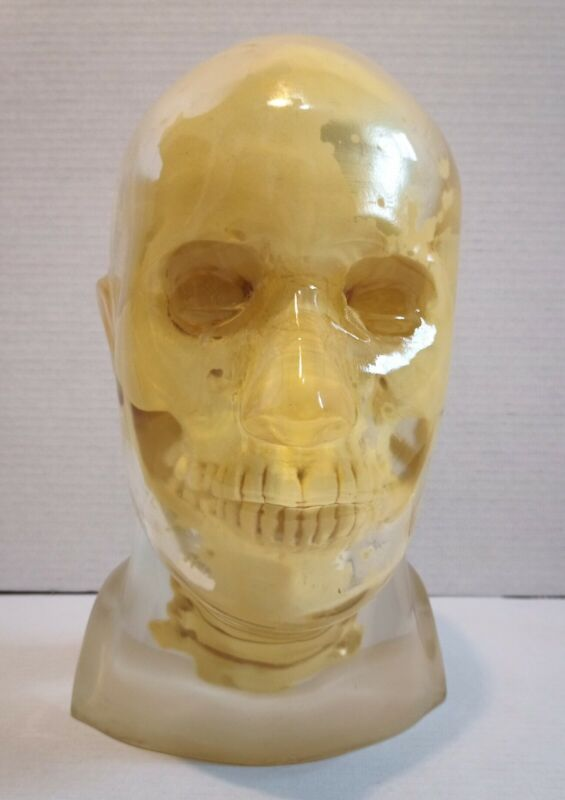 X-RAY TRANSPARENT Skull - Head PHANTOM with Cervical C1-C7