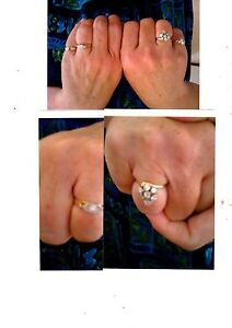 Missing diamond rings and gold jewellery White Rock Cairns City Preview