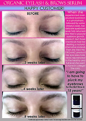 5 Before and After Best Organic Eyelash Growth Serum Safe for Eyebrows Fast