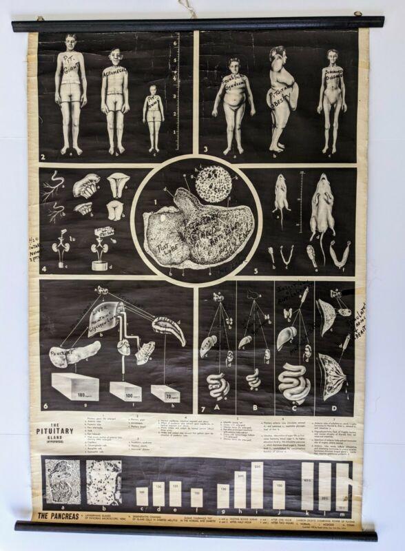 Vintage Rudolf Schick Pituitary Gland And Pancreas Educational Chart 1945