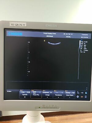 Chison I3 Ultrasound Machine Excellent Condition Perfectly Working 2 Probes