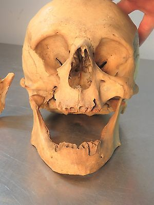 Vintage HUMAN SKULL Jaw Realistic Lifesize MODEL Anatomy Medical Teaching Study