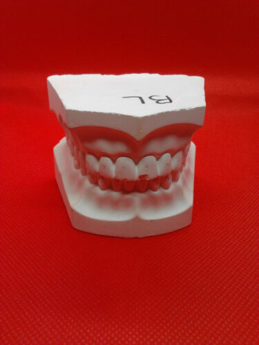 PLASTER MODEL TEETH FOR DENTAL STUDENTS LAB AND DENTISTRY PRE-OWNED