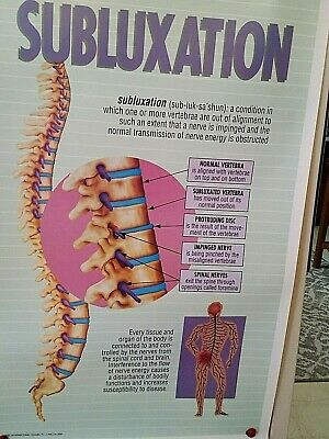 Subluxation Anatomy Medical Poster Chart Spine Back Vertebra Nerves 21 X 31