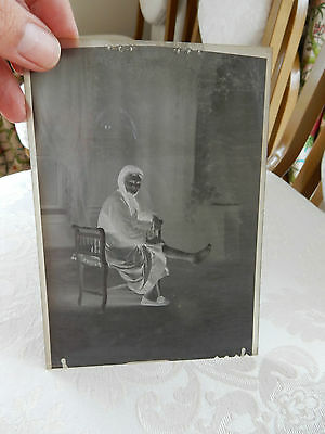 RARE  negative WW1  ERA LADY WITH ULCERS DOCTOR NURSE SURGEON  gift potential B