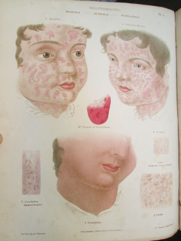 """""""Diseases Of The Skin"""" Book - 1845 - COLOR PLATES - Rayer - Medical - Civil War"""