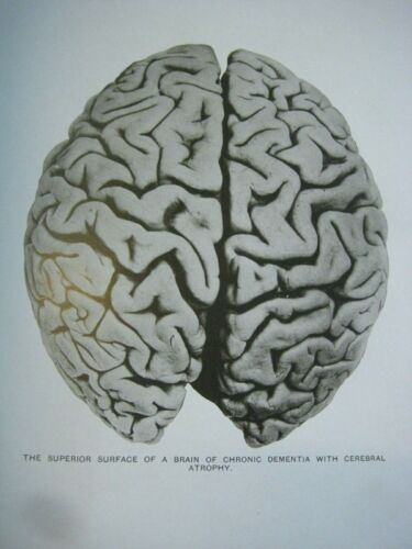 RARE ✅ GROSS MORBID ANATOMY_INSANE BRAINS_ 75 LARGE PICTURES_ANTIQUE DOCTOR BOOK