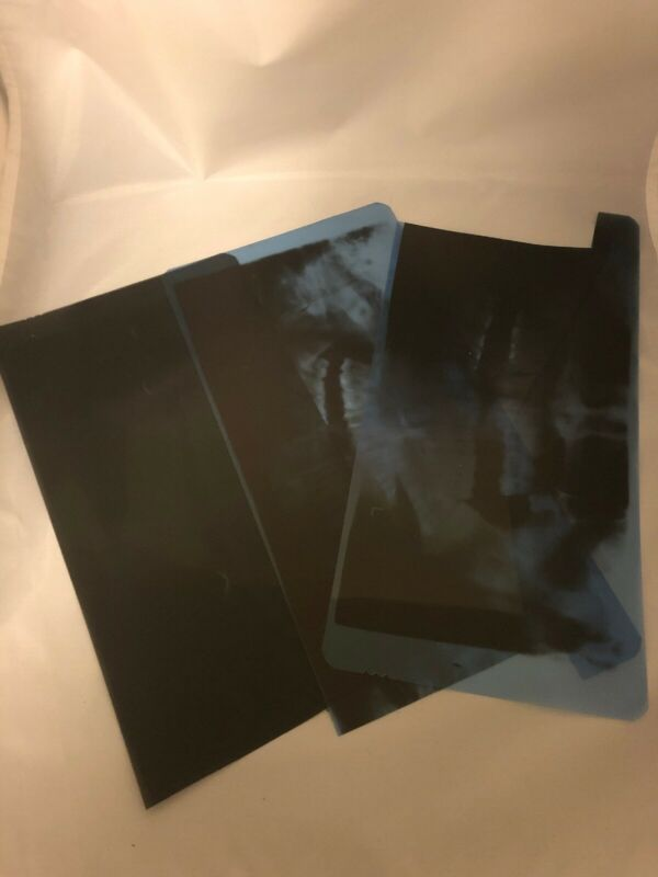 Silver Recovery- 5 lbs. Exposed X-Ray Film