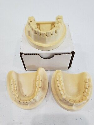 Dental Plaster Mouth Educational Model Adult Mold Teeth