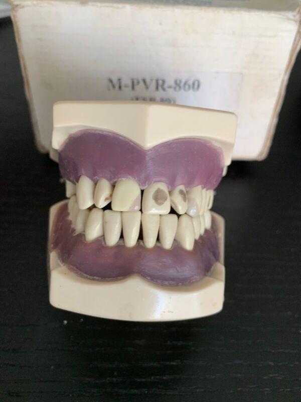 Columbia Dentoform Typodont M-PVR-860 Dental - BEST OFFER