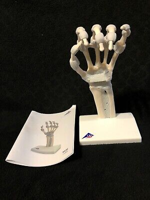 3b Scientific M36 Hand Skeleton With Elastic Ligaments Anatomical Model Anatomy