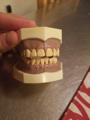 Dentoform Typdont Teeth Dental Students Training Model Sell Dentistry Unitek