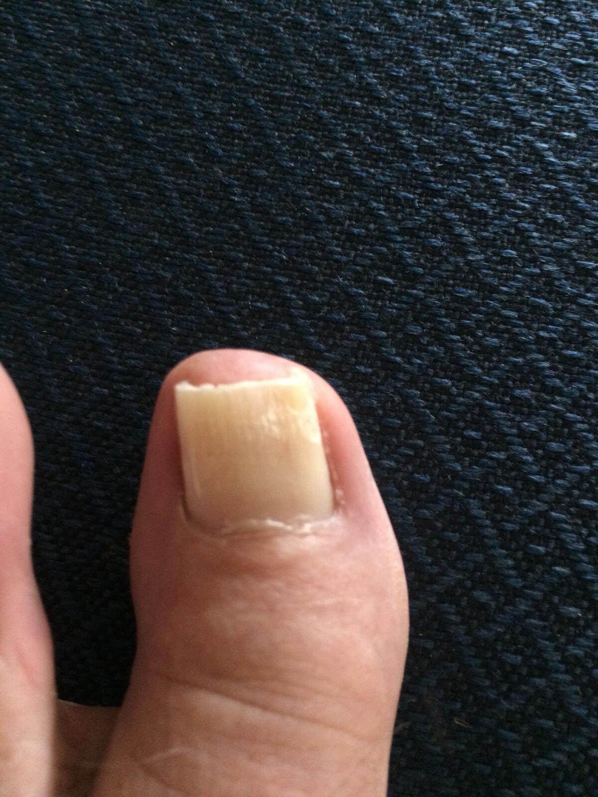 kerasal fungal nail renewal treatment