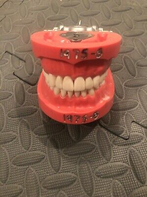 Kilgore Typodont Pro2001-ul-hd-dpm-32 32 Teeth W Hard Gingivae
