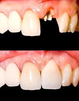 Temporary Tooth Kit x 3 Temp Dental Repair Replace Missing DIY Safe & Easy](Diy Safe)