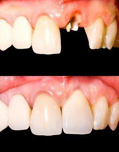 Dental repair kit ebay temporary tooth kit x 3 temp dental repair replace missing diy safe easy solutioingenieria Images
