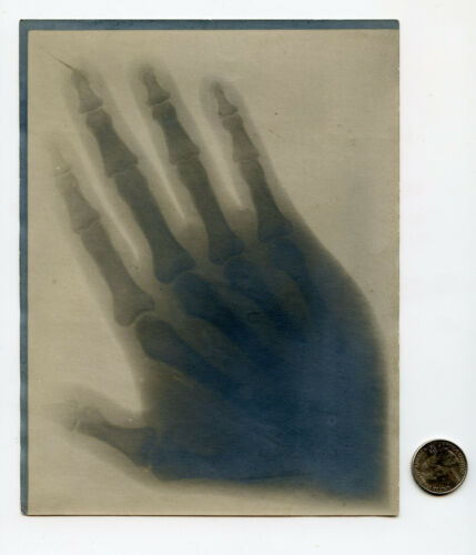 LONG GALLEY Electrical Experimenter 1919 SHADOW PHOTOGRAPH A New Form of X-RAY