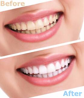 Teeth Whitening 10% off the ad price for only one week Coburg Moreland Area Preview
