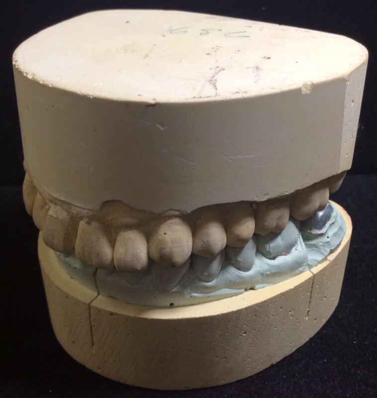 Dentistry Dental Mold