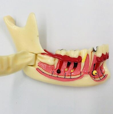 Dental Mandibular Mandible Quadrant Study Model Tooth Disease