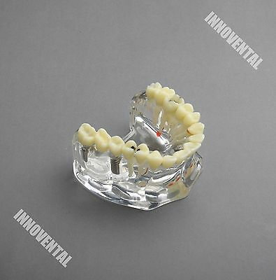 Dental Model 2006 01 - Upper Jaw Implant Model With Bridge And Caries -i