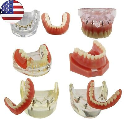 Dental Implants Restoration Teeth Model Overdenture Inferior 4 Golden Demo Usa