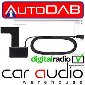 jvc kd db97bt smb glass mount dab car stereo radio aerial. Black Bedroom Furniture Sets. Home Design Ideas