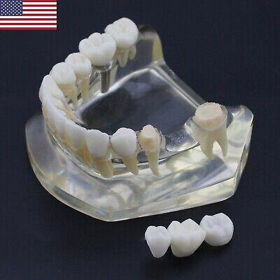 Usa Dental Implant Teeth Bridge Model Clear Transparent Typodont Lower Jaw 2010