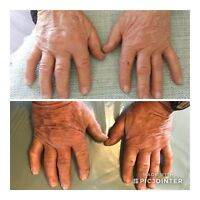 Joint pain and healthy skin