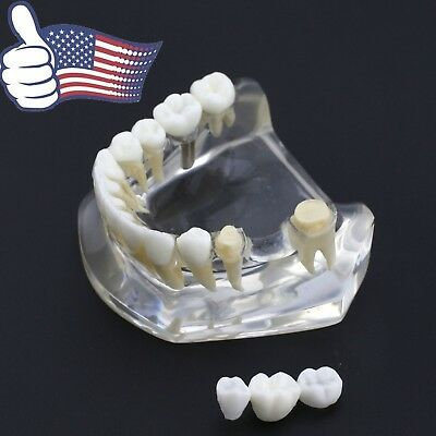 Dental Implant Model Lower Jaw Teeth 3-unit Bridge Crown Transparent Nissin 2010