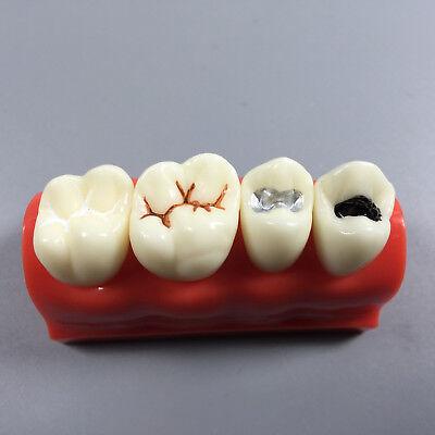 Dental Adhesive Pit Fissure Sealant Study Model Silver Amalgam Dentist Teach 1
