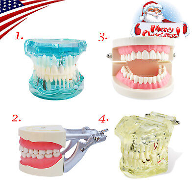 Usa Dental Study Analysis Demonstration Teeth Disease Model Restoration