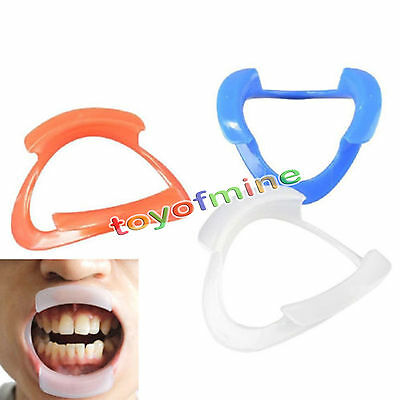 2Pcs Dental O Shape Type Intraoral Cheek Lip Retractor Mouth Opener