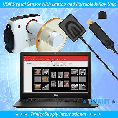 Laptop 15digital X-ray Dental Sensor Size1.5 And Remex Portable X-ray System